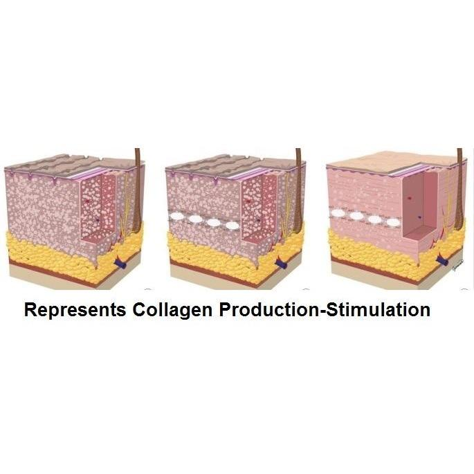COLLAGEN PRODUCTION STIMULATION