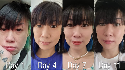 vivi cheo profhilo review before and after pictures