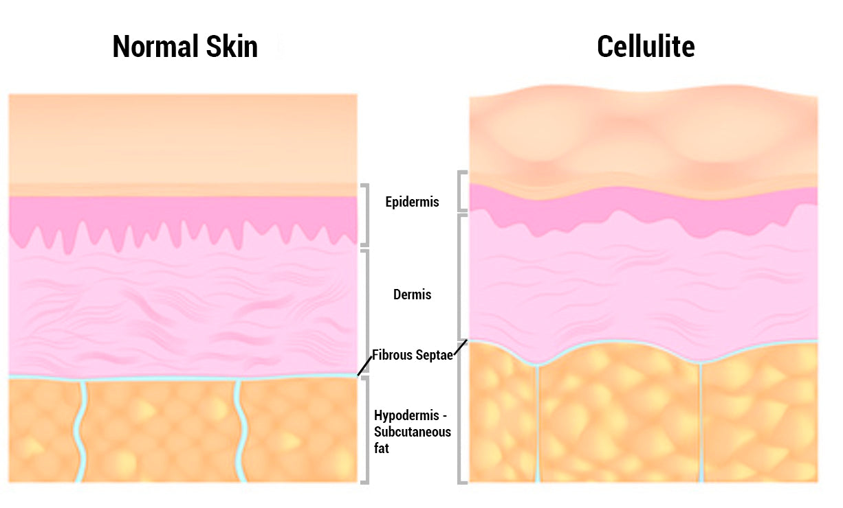 Normal skin vs skin will cellulite - Orion Red Light Therapy