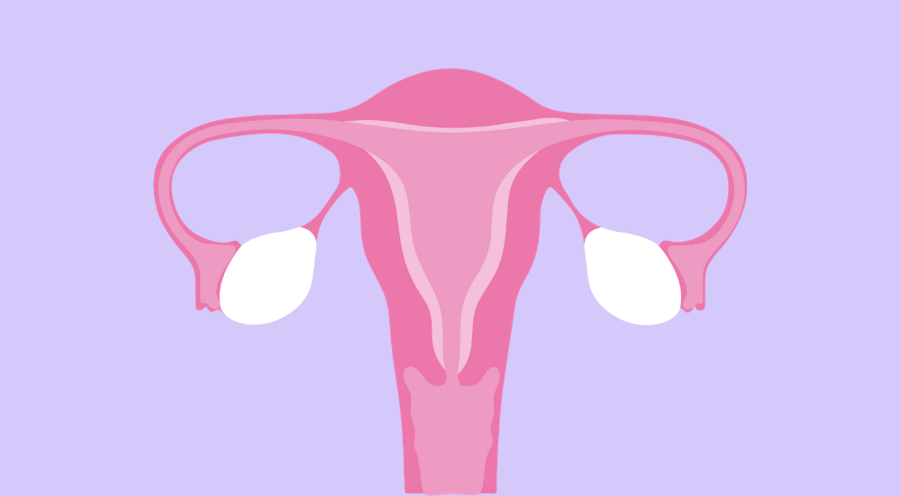what actually is endometriosis?