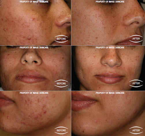Acne skin care case studies.