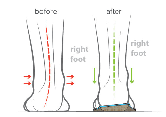 arch supination and high arch support