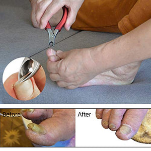 Toenail clippers for Elderly