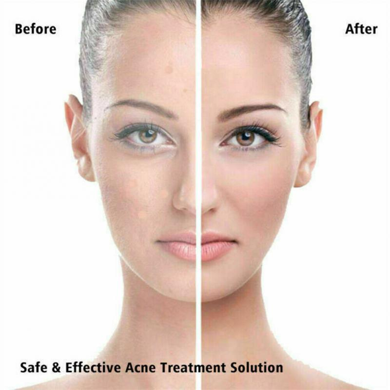 Intense Acne Patch Facial Care Treatment - SSStyleN.com