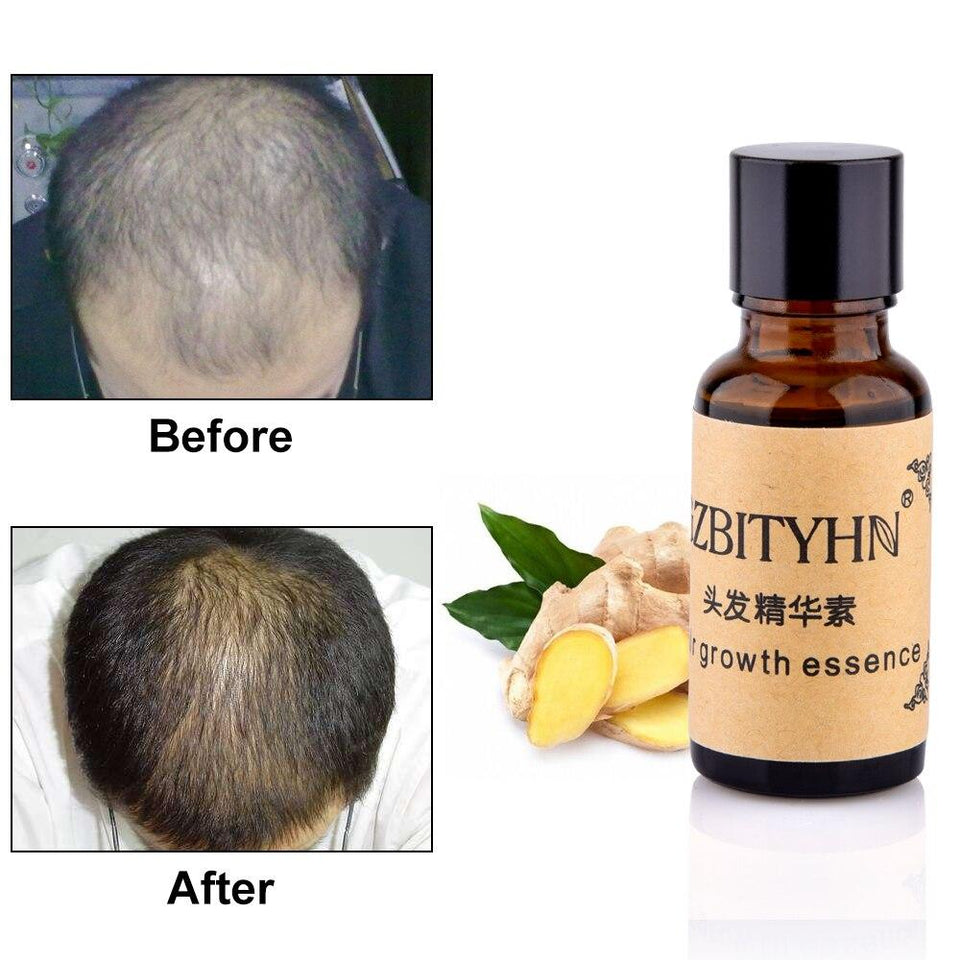 Hair Growth Essence Liquid Fast Hair Growth Natural Extract Ginger Hair Growth Faster Oil Anti Hair-loss Nourishing 20ml - SSStyleN.com