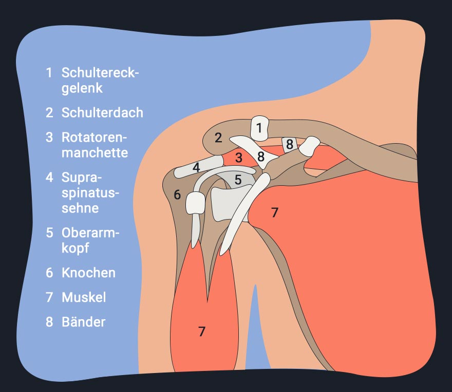 Impingement Syndrom Schulter