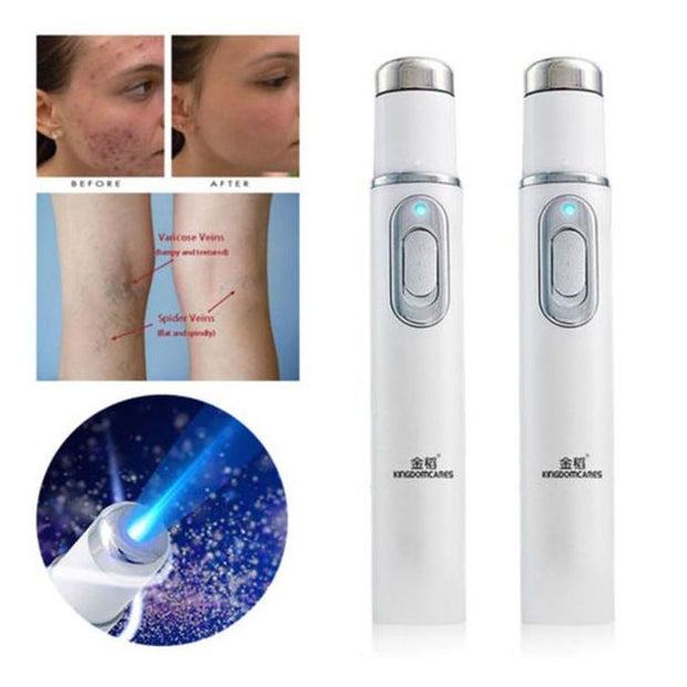 Blue Light Therapy for Acne Treatment Pen &  Spider Vein Removal