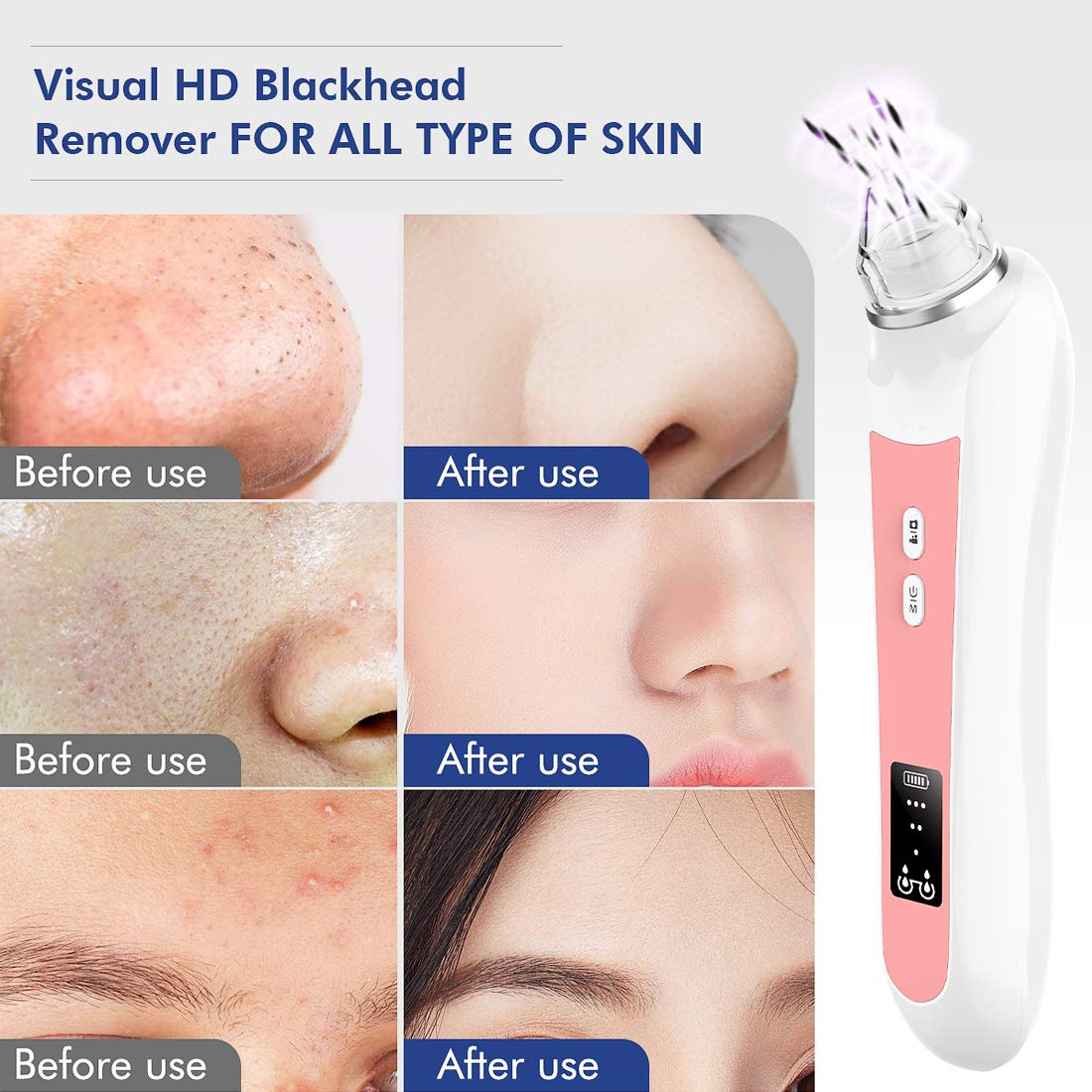Precise - Blackhead Remover Vacuum With 6 Replaceable Probes Built-in Camera & WiFi real-time Skin Screen, USB Rechargeable