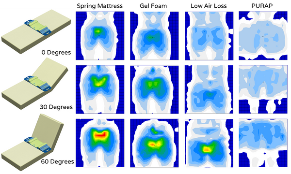 Clinical studies with PURAP shows distribution of peak pressures and temperature.