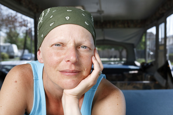 How to Deal with Hair Loss When Undergoing Chemo