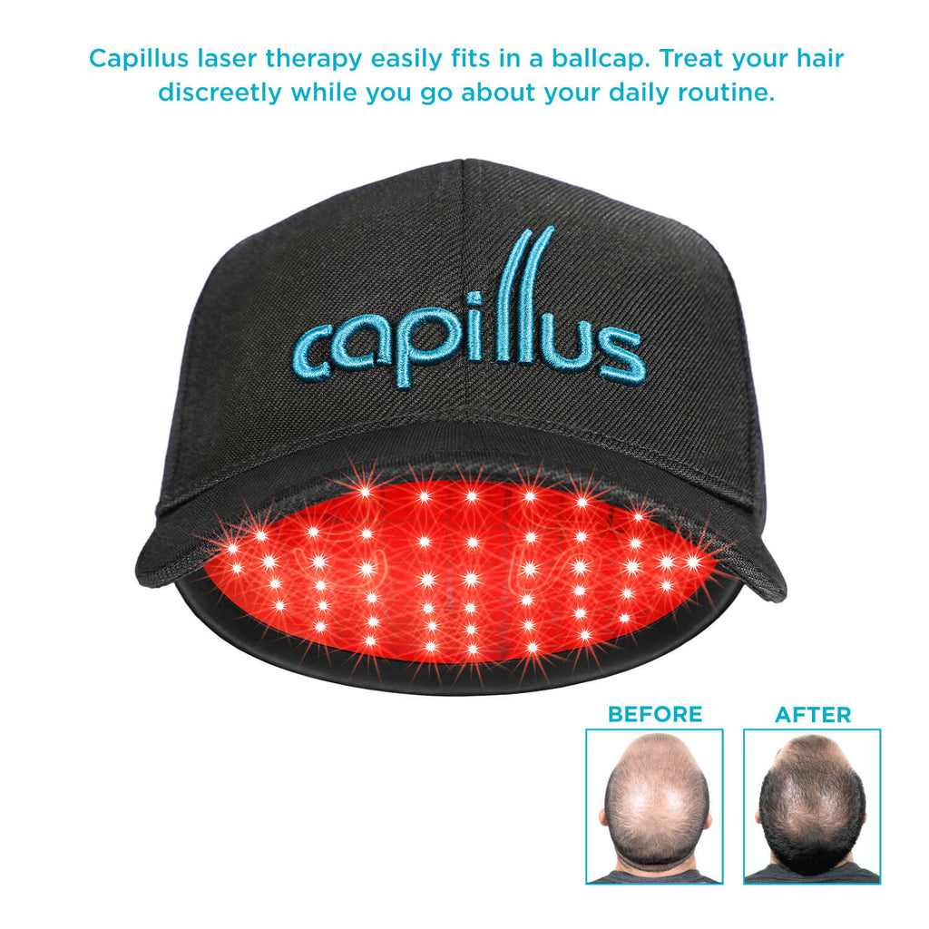 Capillus offers discreet laser therapy under your cap