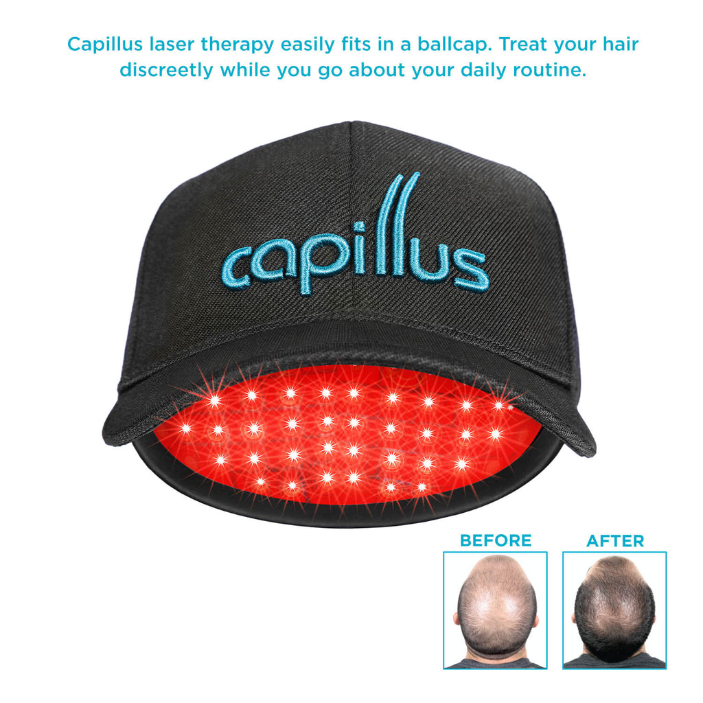 Capillus offers you discreet laser therapy under your cap