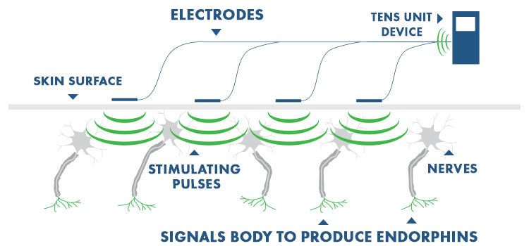 How does a tens unit work