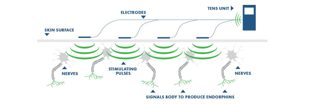 TENS Unit Nerve Diagram. Learn how a TENS machine works to kill pain by sending electrical impulses to your nerve strands and skin.