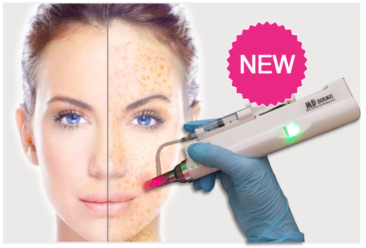 MESODERMIS Microneddle Pen - Mesopen