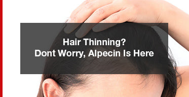 Worried About Your Thinning Hair? Almost Gone Bald?