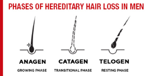 Hereditary hair loss in men