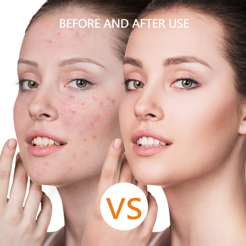 Human - PerfectSkin™ Anti-Aging, Anti-Acne Professional LED Face Mask LED Light Therapy With Amazing Anti Wrinkle Properties