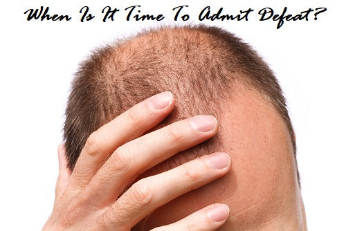Balding When To Shave Your Head