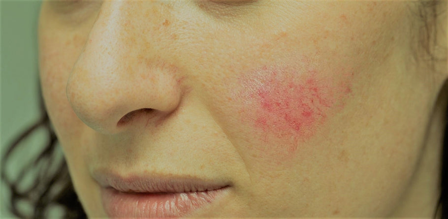 Red Light Therapy for Rosacea: Is Red Light the Key to Fighting Redness?