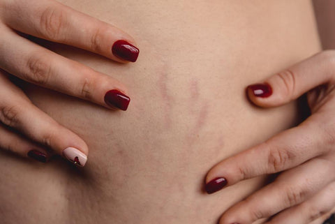 Red Light Therapy for Stretch Marks: How You Can Improve Your Skin's Appearance | Rouge