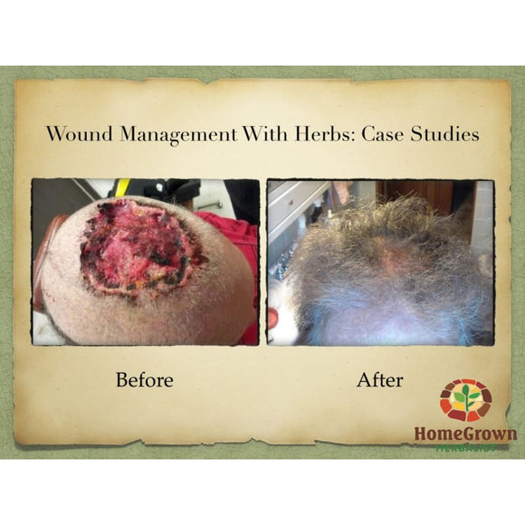 Herbal Wound Management Iii: Case Studies - Learning Modules Homegrown Herbalist