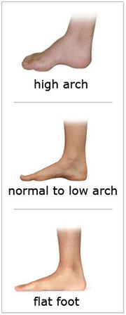 High, normal and low arch