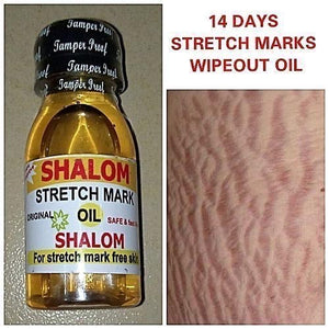 Stretch Marks serum - omez beauty products