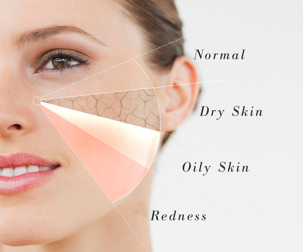 skin-type-normal-dry-skin-oily-skin-redness-sosnation.com_