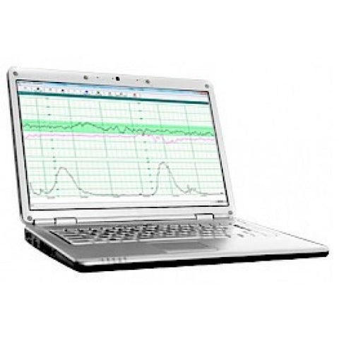 Wallach Insight Software for Fetal2EMR Fetal Monitor