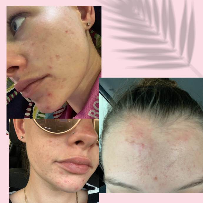 How i cleared my acne in 5 days