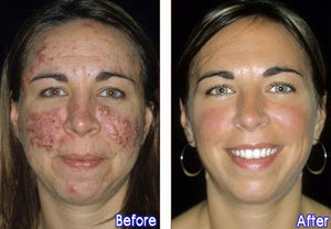 BluePen Light Therapy Skin Treatment & Reduce Acne Breakouts