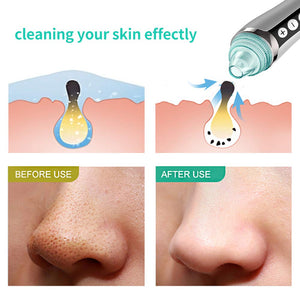 Phenitech Blackhead Suction Remover with 4 Interchangeable Heads | Monthly Madness