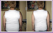 Shapeez No Back-Fat Before and After photo