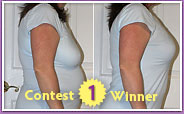 First place Shapeez No Back-Fat Before & After Contest winner