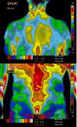 From Pain Relief to Improved Digestion: Grounding Benefits Confirmed Through Thermal Imaging