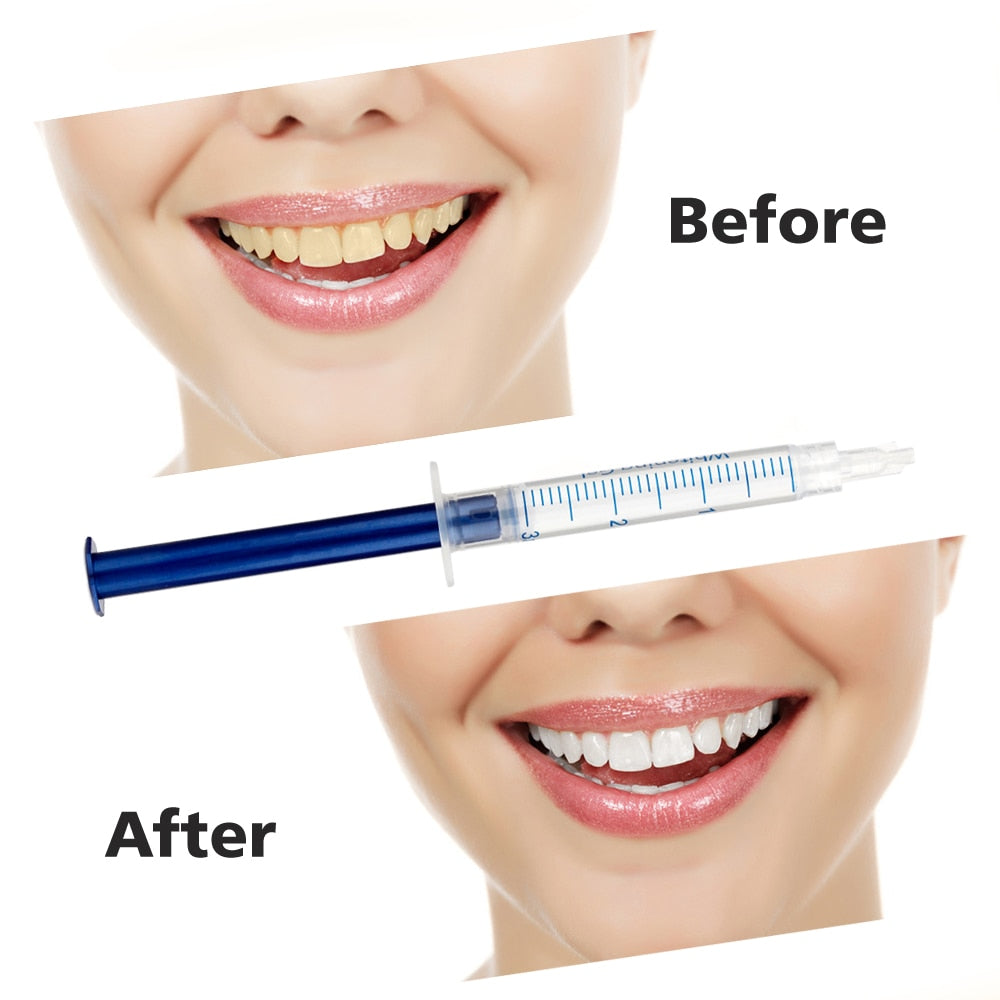 Professional Teeth Whitening Gel with LED Light - 4aces Gadets