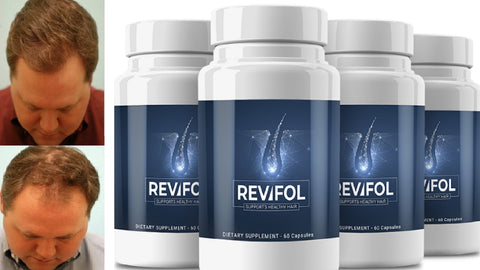revifol hair regrowth review
