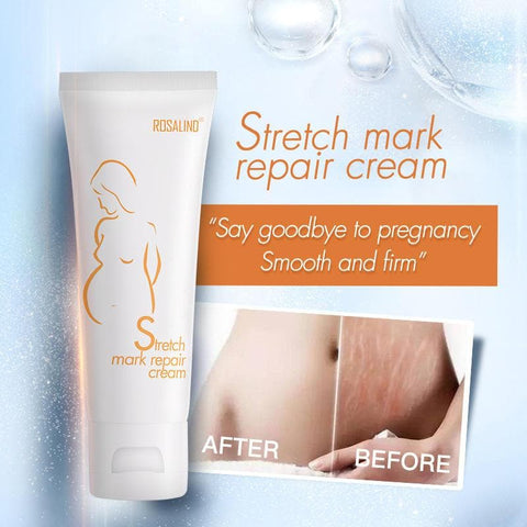 Rosalind Dilute Scar Acne Scars Stretch Marks To Stretch Marks Cream - #01 - FLJ CORPORATIONS