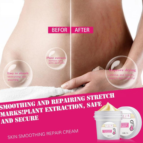 Stretch Mark Removal Cream Postpartum Scar Obesity  Mask Powerful  Scar  Removal Cream  - #01 - FLJ CORPORATIONS