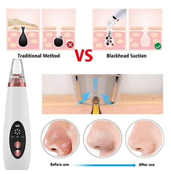 HomeAlive™ Electric Blackhead Remover Skin Pore Cleaner Vacuum Acne Cleaner