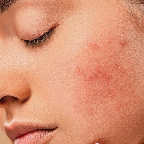 Top Anti-Acne Ingredients To Include In Your Skincare