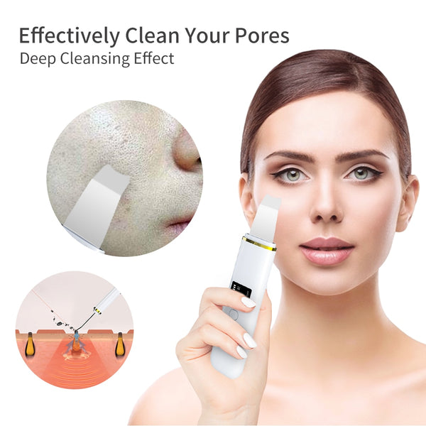 Ultrasonic Skin Scrubber Deep Facial Cleaning Machine Remove Dirt Blackhead