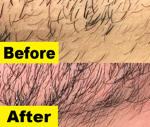 Beard growth kit before and after