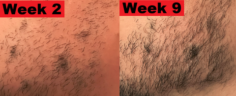 Beard gains before and after