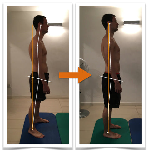 posture corrector to increase height