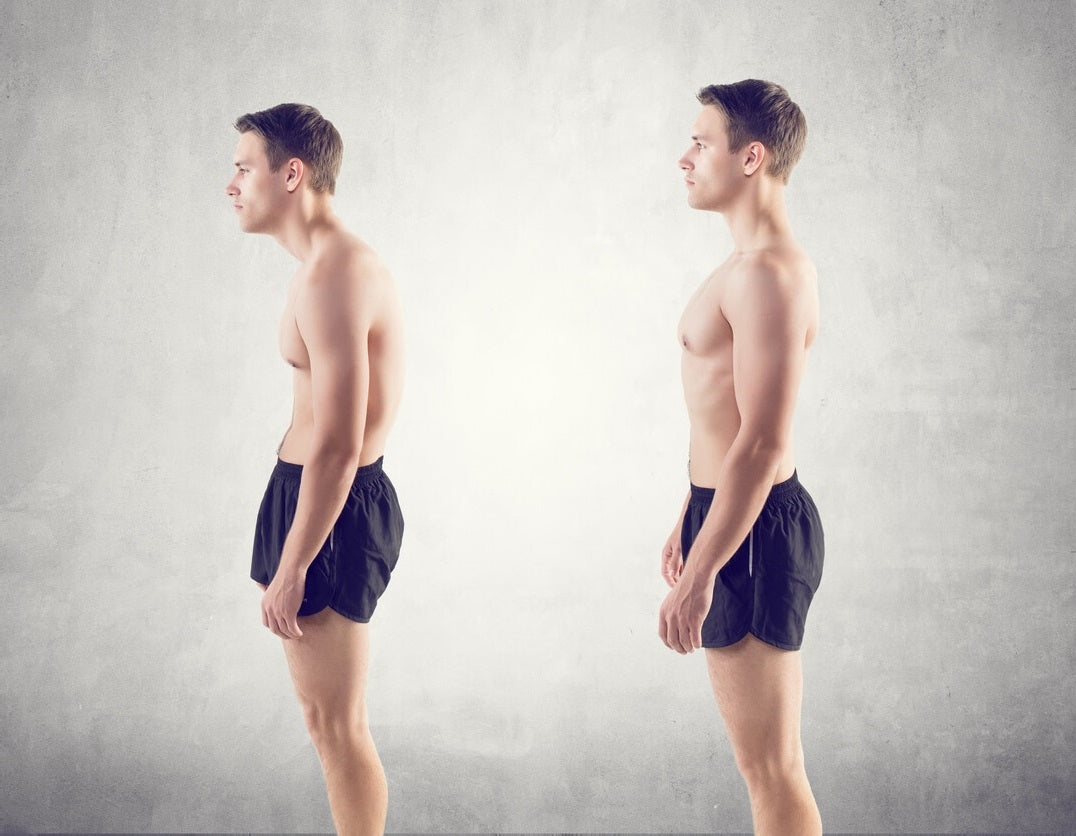 Before and After Improved Posture