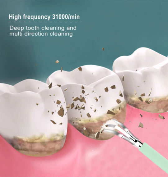 Clean™ Ultrasonic Tooth Cleaner 2.0