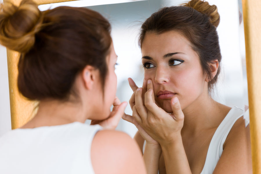 What Can You Do About Acne Outbreaks?
