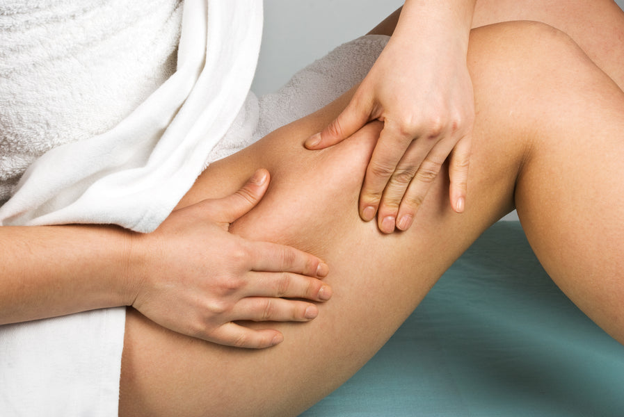 Cellulite and What Should You Know About This Condition
